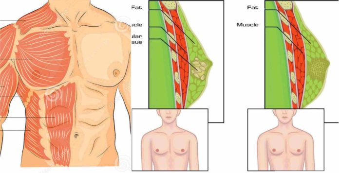 cum să pierzi grăsimea în partea superioară a corpului